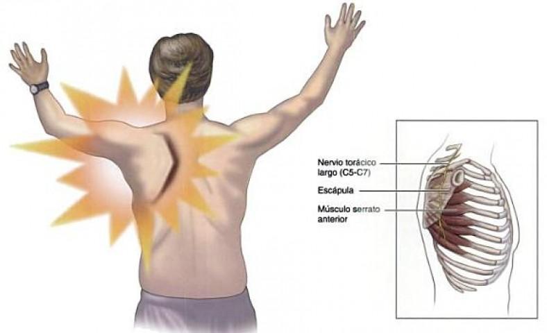 Resultado de imagen para sindrome de la escapula alada
